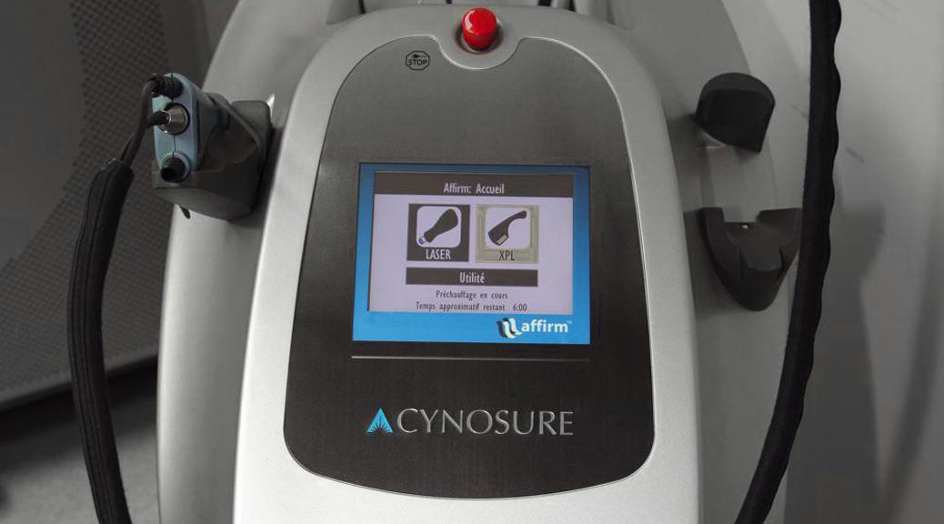 Traitement laser fractionné des cicatrices d'acné et vergetures